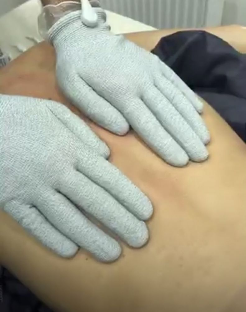 Meridian Acupunctur Therapy